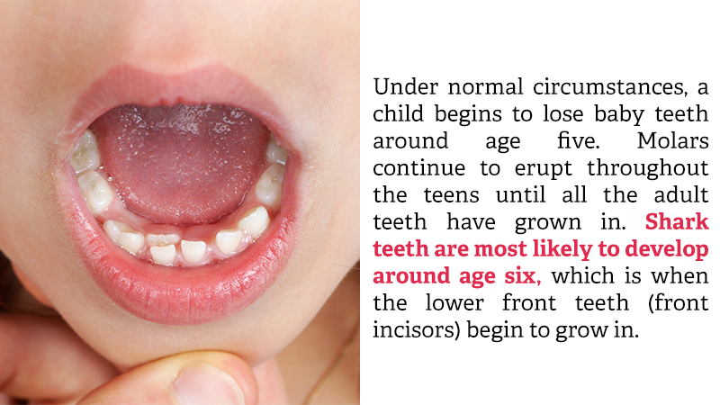 Under normal circumstances, a child begins to lose baby teeth around age five. Molars continue to erupt throughout the teens until all the adult teeth have grown in. Shark teeth are most likely to develop around age six, which is when the lower front teeth (front incisors) begin to grow in.