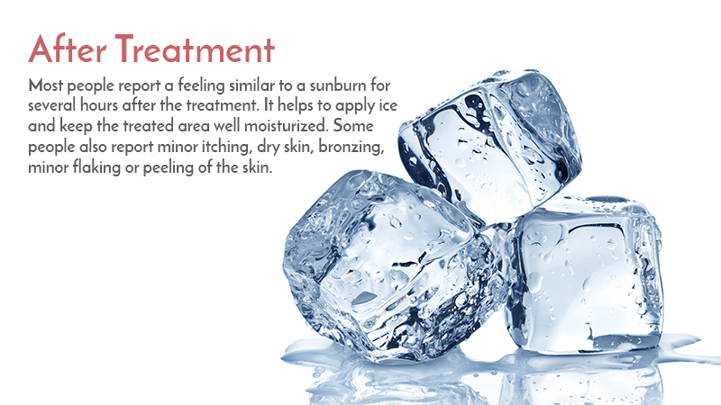 Most people report a feeling similar to a sunburn for several hours after the treatment. It helps to apply ice and keep the treated area well moisturized. Some people also report minor itching, dry skin, bronzing, minor flaking or peeling of the skin.