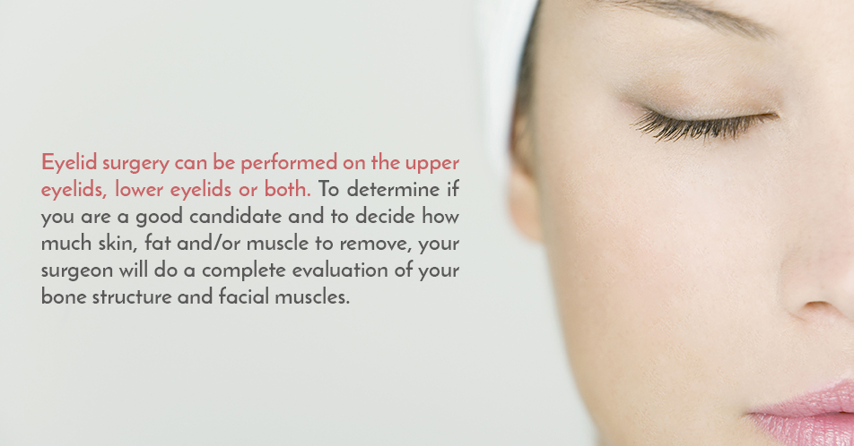Eyelid surgery can be performed on the upper eyelids, lower eyelids or both. To determine if you are a good candidate and to decide how much skin, fat and/or muscle to remove, your surgeon will do a complete evaluation of your bone structure and facial muscles.