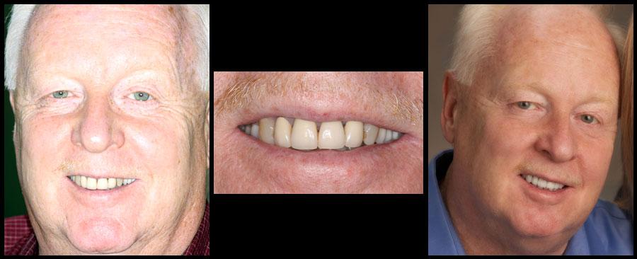 Dentist Greenville Sc Dental Clinic Near Me Spyros A