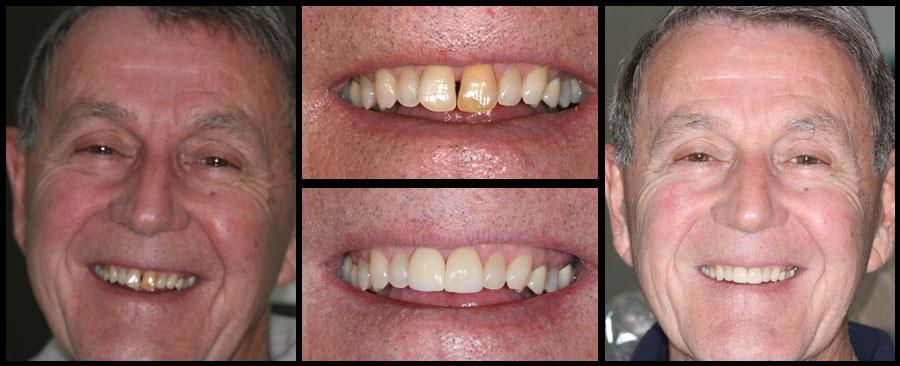 Dentist Clinic Near Me Open Today Dentist Greenville Sc