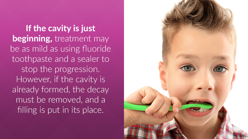 If the cavity is just beginning, treatment may be as mild as using fluoride toothpaste and a sealer to stop the progression. However, if the cavity is already formed, the decay must be removed, and a filling is put in its place.