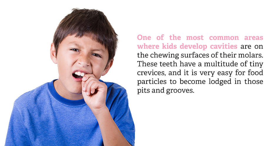 One of the most common areas where kids develop cavities are on the chewing surfaces of their molars. These teeth have a multitude of tiny crevices, and it is very easy for food particles to become lodged in those pits and grooves.