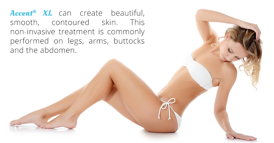 Accent® XL can create beautiful, smoothened, contoured skin. This non-invasive treatment is commonly performed on legs, arms, buttocks, abdomen and under the chin.
