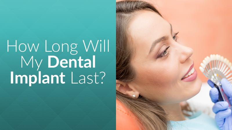 How Long Will My Dental Implant Last?