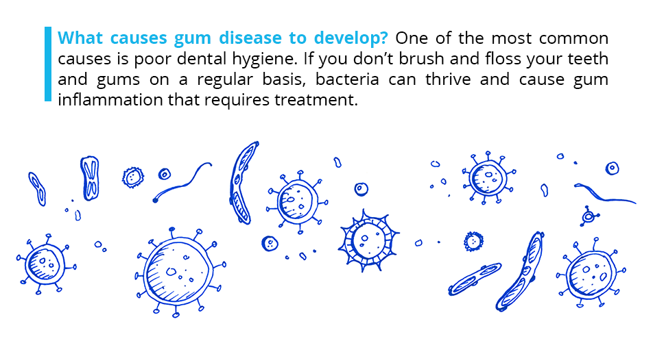 What causes gum disease to develop? One of the most common causes is poor dental hygiene. If you don't brush and floss your teeth and gums on a regular basis, bacteria can thrive and cause gum inflammation that requires treatment.