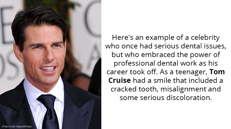 Here's an example of a celebrity who once had serious dental issues, but who embraced the power of professional dental work as his career took off. As a teenager, Tom Cruise had a smile that included a cracked tooth, misalignment and some serious discoloration.