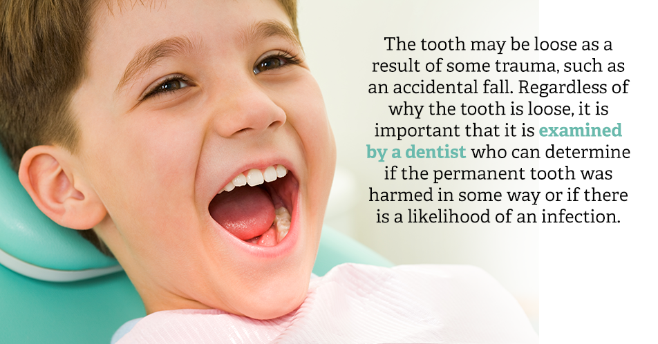 The tooth may be loose as a result of some trauma, such as when your child accidentally fell. Regardless of why the tooth is loose, it is important that it is examined by a dentist who can determine if the permanent tooth was harmed in some way or if there is a likelihood of an infection.