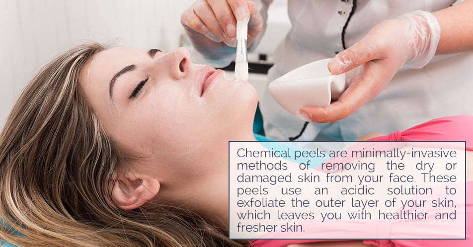 Chemical peels are minimally-invasive methods of removing the dry or damaged skin from your face. These peels use an acidic solution to exfoliate the outer layer of your skin, which leaves you with healthier and fresher skin.