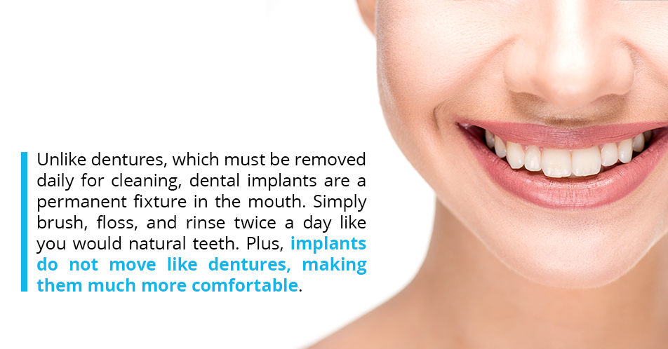 Unlike dentures, which must be removed daily for cleaning, dental implants are a permanent fixture in the mouth. Simply brush, floss, and rinse twice a day like you would natural teeth. Plus, implants do not move like dentures, making them much more comfortable.