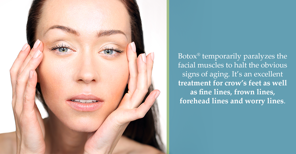 Botox® temporarily paralyzes the facial muscles to halt the obvious signs of aging. It's an excellent treatment for crow's feet as well as fine lines, frown lines, forehead lines and worry lines.