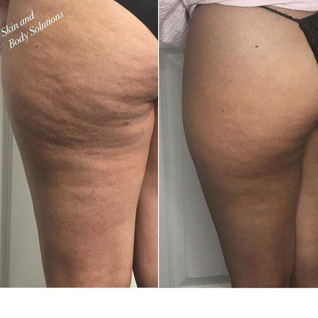 Skin And Body Spa Dallas Tx