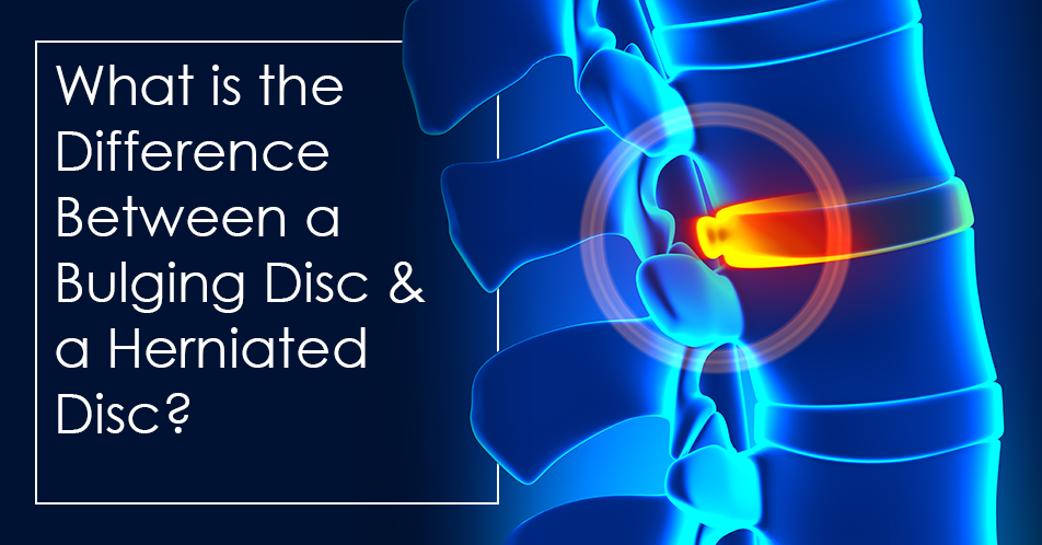 What is the Difference Between a Bulging Disc and a Herniated Disc?