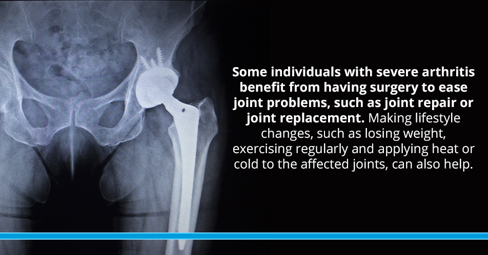 Some individuals with severe arthritis benefit from having surgery to ease joint problems, such as joint repair or joint replacement. Making lifestyle changes, such as losing weight, exercising regularly and applying heat or cold to the affected joints, can also help.