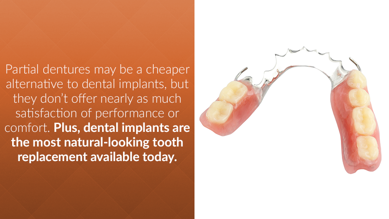 Partial dentures may be a cheaper alternative to dental implants, but they don't offer nearly as much satisfaction of performance or comfort. Plus, dental implants are the most natural-looking tooth replacement available today.