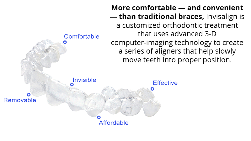 More comfortable — and convenient — than traditional braces, Invisalign is a customized orthodontic treatment that uses advanced 3-D computer-imaging technology to create a series of aligners that help slowly move teeth into proper position over a 12-month period.