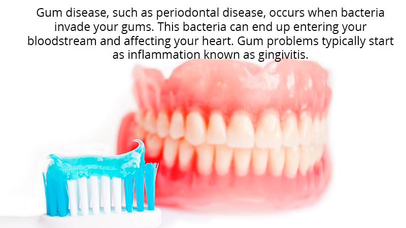 Gum disease, such as periodontal disease, occurs when bacteria invade your gums. This bacteria can end up entering your bloodstream and affecting your heart. Gum problems typically start as inflammation known as gingivitis.